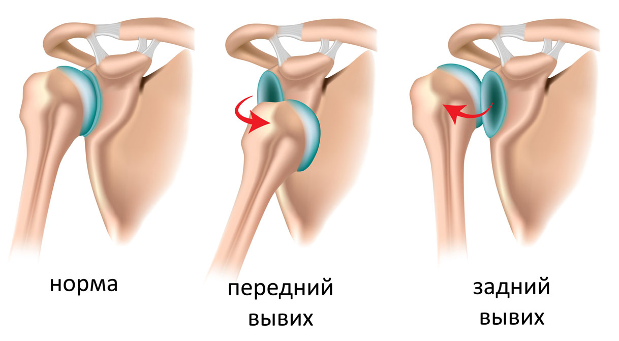 Переломы и вывихи плеча » KindMed.Ru