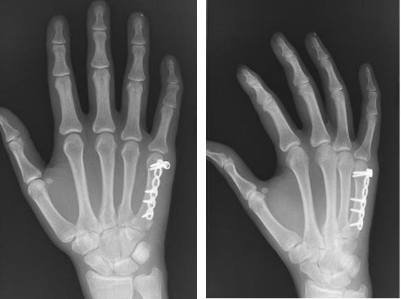 Оскольчатый перелом сустава на пальце начальная стадия артроза локтевого сустава