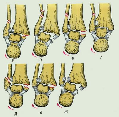 Пронационное повреждение голеностопного сустава замена коленного сустава по квоте
